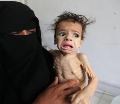 Πάνω από 8 εκ. άνθρωποι κινδυνεύουν από λιμό στην Υεμένη!